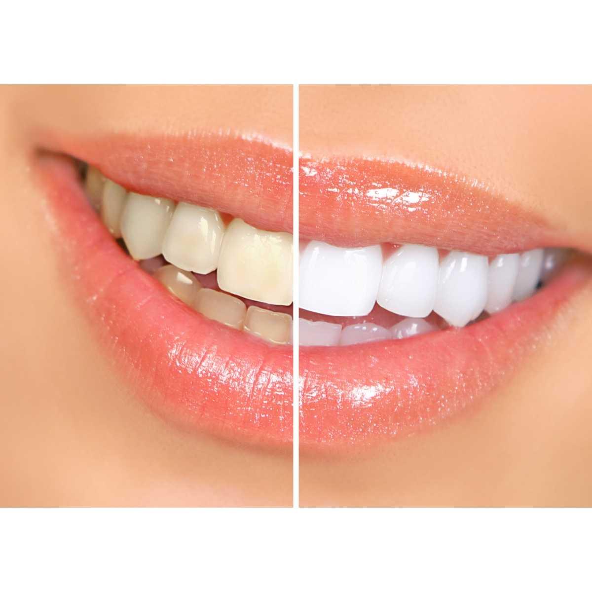 NIGHT, Tiras de blanqueamiento dental estético